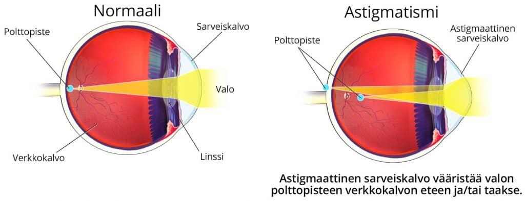 Astigmaattinen silmä