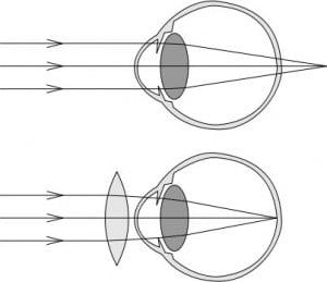 Kysymyksiä ja vastauksia silmien laserleikkauksesta
