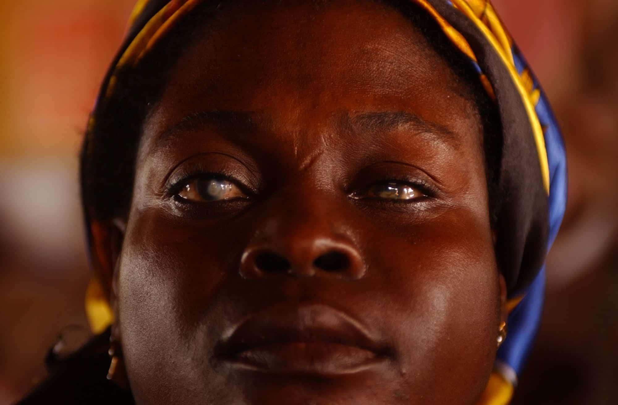 Kaihista kärsivä ghanalainen nainen