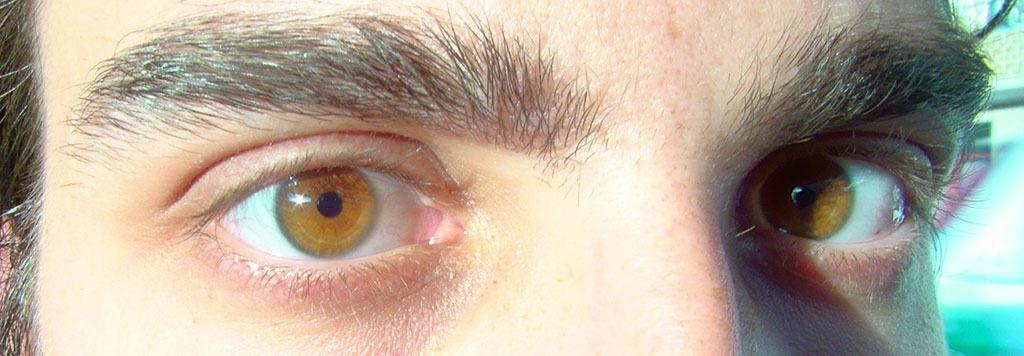 Kullankeltaiset (amber) silmät