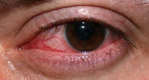 Iriitistä johtuva punoittava silmä
