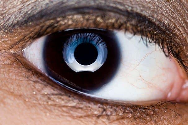 Lähikuva silmästä. Kuva: Wikimedia Commons